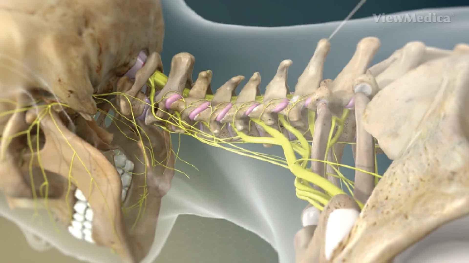 Facet joint cervical treatment